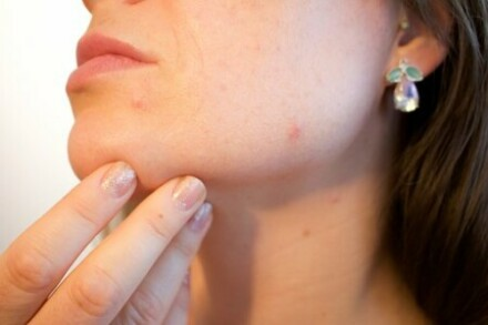 Do Chemical Peels Remove Acne Scars?