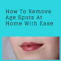 Remove Age Spots At Home With Ease