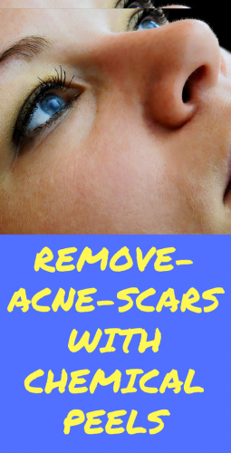 remove-acne-scars With Chemica peels