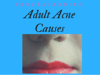 Adult Acne Causes[Get Rid Of Acne Once And For All]