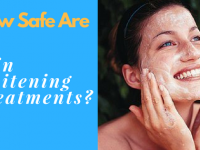 Are Skin Whitening Treatments Safe?