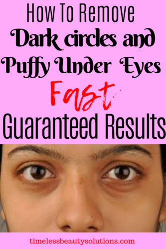 Learn how to remove dark circles from under your eyes fast with guaranteed results.