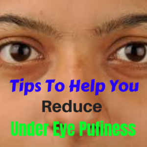 remedies for puffiness under eyes
