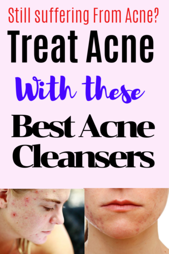 Best Acne Cleanser Reviews will look at different acne cleansers,how they work and how you should choose when buying.Learn how cleansers work and simple is the word here,,keep your skin care simple.