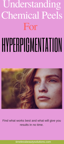 Facial Peels For Hyperpigmentation Know Your Peel Tolerance Level