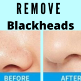Remove Blackheads From The Nose