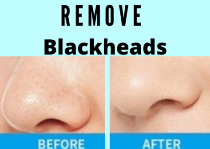 Best Device To Remove Blackheads From The Nose Area