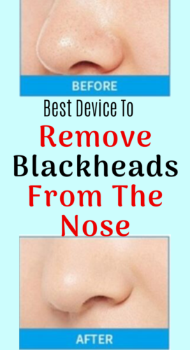This is Remove Blackheads From The Nose