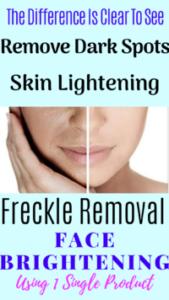 Scobuty Skin Bleaching Cream[Best Dark Spot Remover]