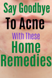Home Remedies For Acne Treatment I Trust And Recommend