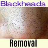 Best Products To Remove Blackheads