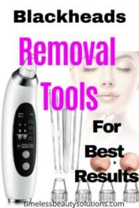 blackheads removal tools