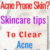Skin Care Tips For Acne Prone Face